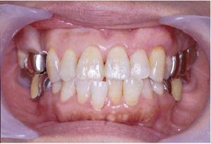 歯肉移植1